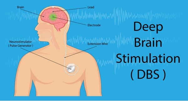 Brain Stimulation for anxiety